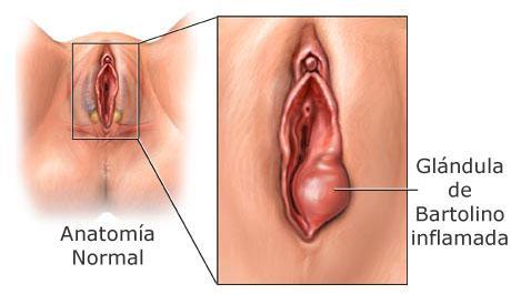 antibiotico para absceso vulvar